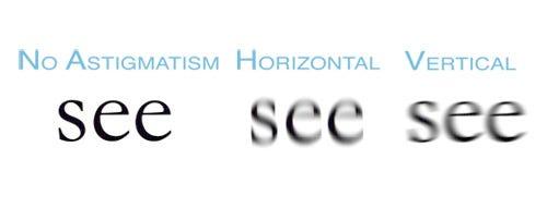 blog - symptoms of astigmatism, Cephalic Vein